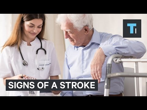 How to tell if you're having a stroke