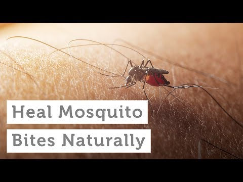 Heal Mosquito Bites Naturally