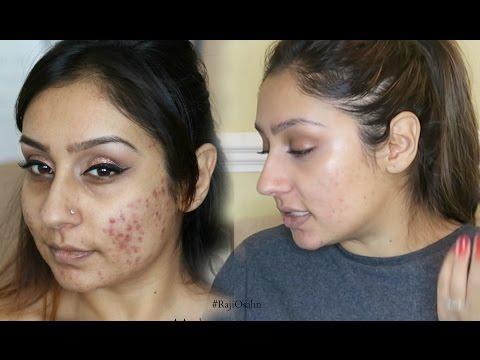 Vitamins for clear skin No more acne cystic acne | Raji Osahn