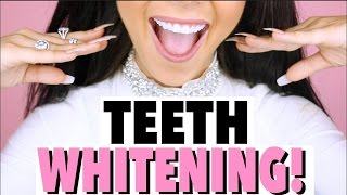 How I Whiten My Teeth