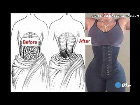 Health Effects of Waist Trainers