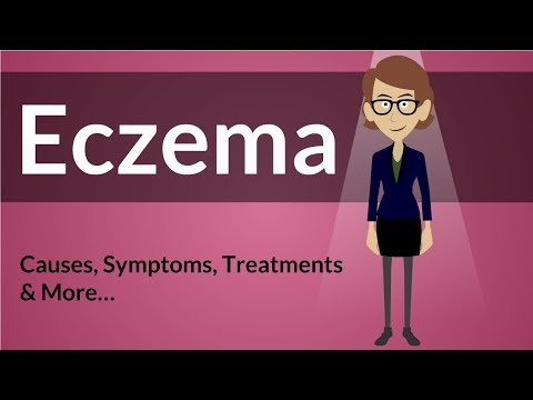 Eczema -  Causes, Symptoms, Treatments & More…