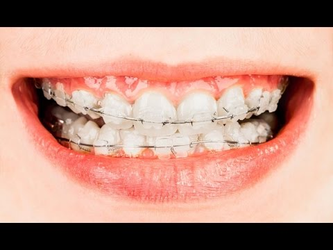Top 4 Crooked Teeth Solutions