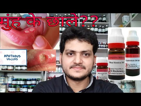 Mouth ulcer! Homeopathic medicine for Mouth ulcer??recurrent mouth ulcers? explain!