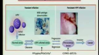 HPV and Cervical Cancer: 25 Years from Discovery to Vaccine