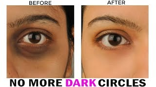 How to Remove Dark Circles Naturally (100% Results) /INDIANGIRLCHANNEL TRISHA