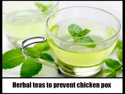 17 Home Remedies For Chicken Pox