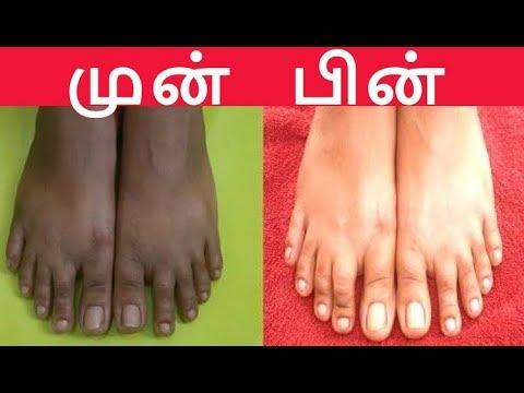 ஒரே இரவில் கை,கால் கருமையை போக்க | Home Remedy for Whitening Hands and Feet |Tamil Beauty Tips