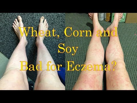 Wheat, Corn and Soy-Free Diet v. High Fat Diet for Healing Eczema