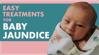 BABY JAUNDICE   Treating JAUNDICE In Babies From HOME