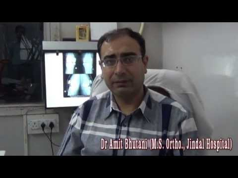 Benefits of Total Knee Replacement ~ Dr Amit Bhutani (Hindi) (720p HD)