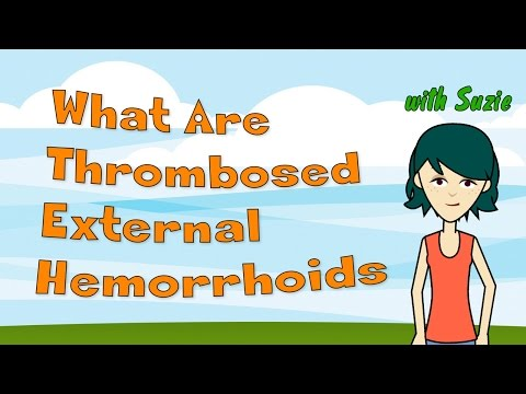 What Are Thrombosed External Hemorrhoids? The Facts