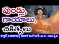 Causes and Ayurvedic Treatment of ULCERS & SORES on SKIN in Telugu | Dr. Murali Manohar