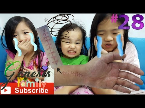 DAD's BROKEN HAND Surgery Stitches (KR1) KIDS REACT Challenge FUNNY KIDS VIDEO #28 Genesis Family +