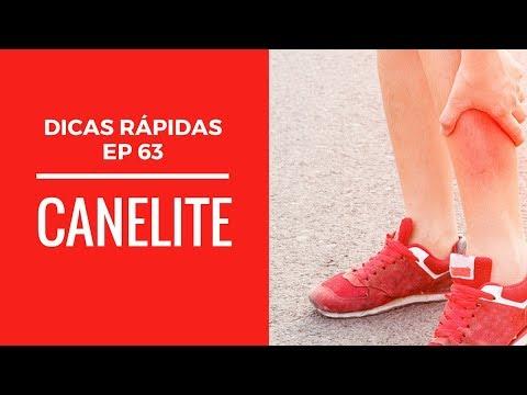 Dicas de saúde e atividade física - Ep. 63: Canelite