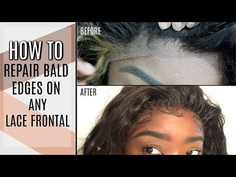 How to Repair your BALDING EDGELESS FRONTAL (Like new again) | Low Hairline