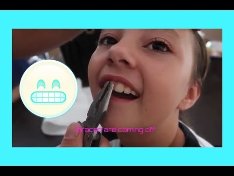 Removing your braces at home vlog