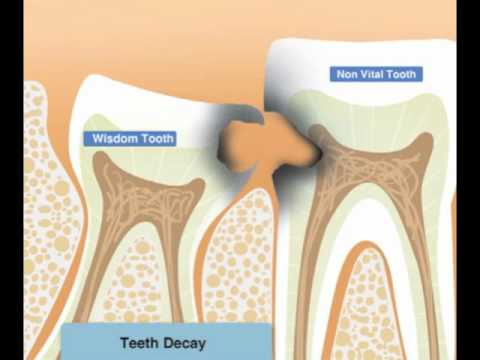 Wisdom teeth pain, infection, or decay- Why third molars are extracted?