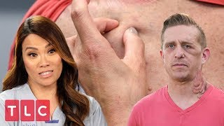 Brittney Is Covered in Mysterious Bumps | Dr  Pimple Popper