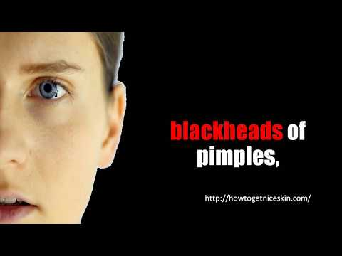 Acne on Right Side of Chin - Top Remedies for Pimples on Chin
