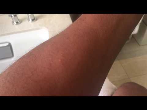 BED BUG BITES - WHAT THEY LOOK LIKE
