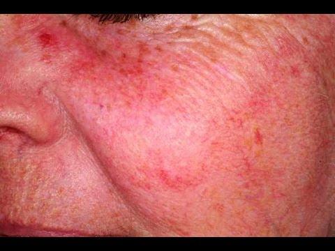 DermTV - How to Treat Facial Redness and Red Blotches [DermTV.com Epi #50]