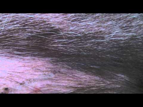 Mister's femoral pulse