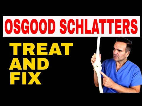 Effective treatment for Osgood Schlatters