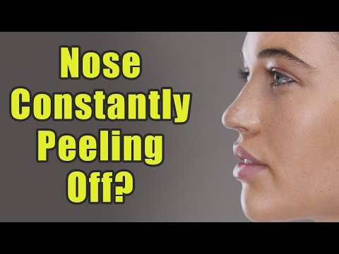 Is Your Skin On Both The Sides Of Your Nose Constantly Peeling Off? Try These Remedies | Boldsky