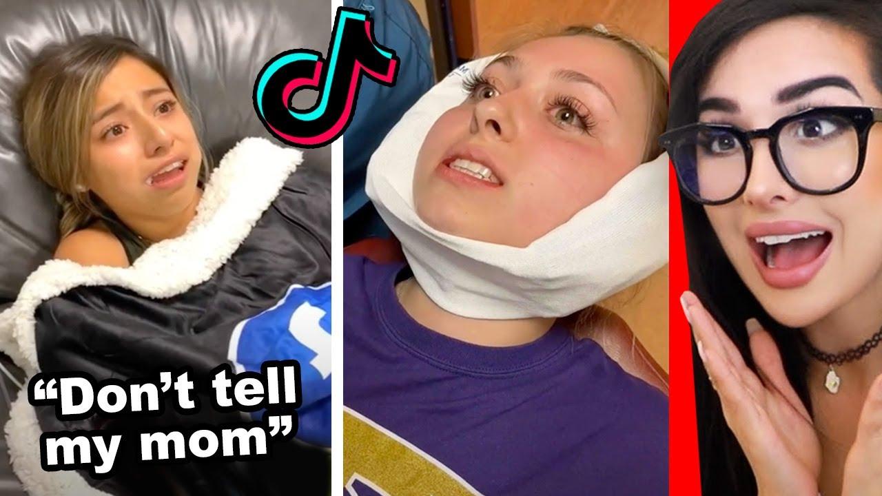 Funniest Wisdom Teeth Removal Tik Toks
