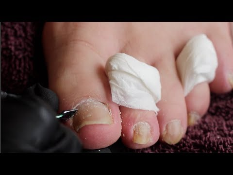 Toenail clean up