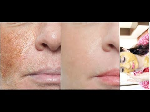 How to Remove Dark Spots And Pigmentation in 5 Days : No.1 Home Remedy