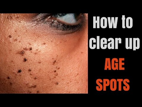 How to get clearer complexion for your skin