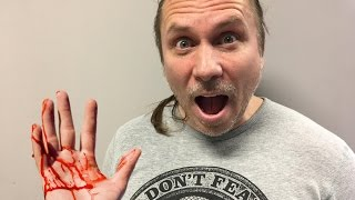 100 SNAKE BITES IN 10 MINUTES! Brian Barczyk