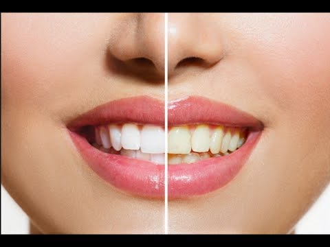 How To Whiten Teeth | How To Whiten Teeth With Baking Soda(Urdu/Hindi)