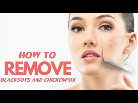 How to Remove The Black Spots After Chickenpox?