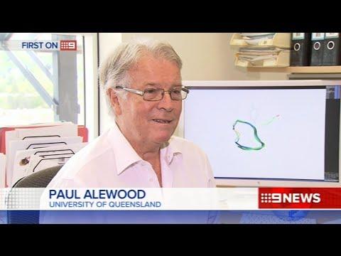 Treating chronic abdominal pain - Nine News Brisbane