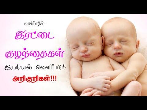 வயிற்றில் இரட்டை குழந்தைகள் இருந்தால் வெளிப்படும்  அறிகுறிகள் - symptoms of twins pregnancy