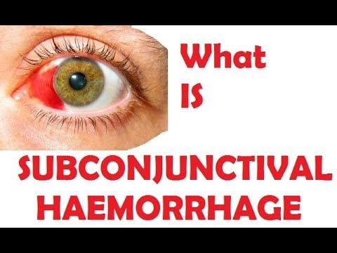 subConjunctival Hemorrhage (HINDI)