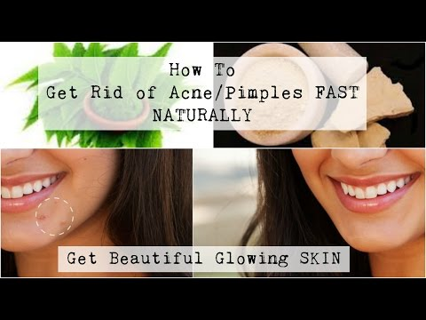 Get Rid of Acne/Pimples & Scars fast Naturally| Get healthy glowing skin Naturally | Indian Skin