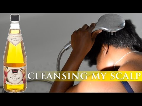 Why: Apple cider vinegar   cleansing scalp   Water Only
