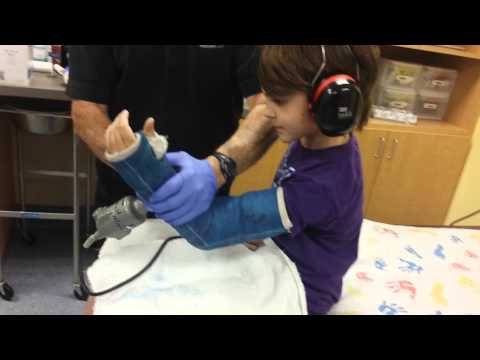 Cutting cast off of Bryan