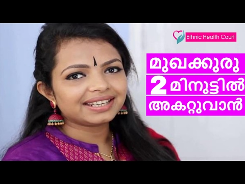 💇 Home remedies for pimples and black heads - Beauty Tips | Dr.Apsara Rajesh | Prevent Pimples