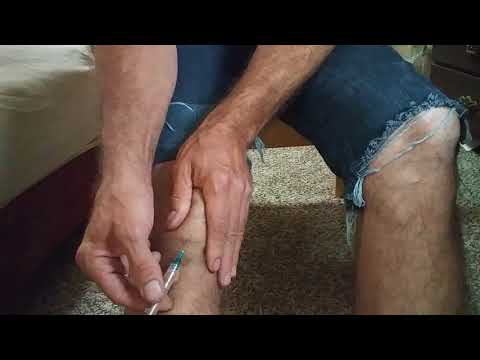 Water on the knee. Carpet installer. Home remedy