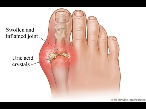 Gout, an explanation of the disease, diagnosis and treatment