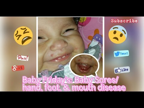 Baby Sores/ hand, foot & mouth disease ● Baby Friday's
