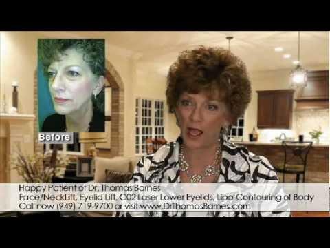 Neck Lipo Facelift Eyelids Orange County Newport Beach   Dr. Thomas Barnes