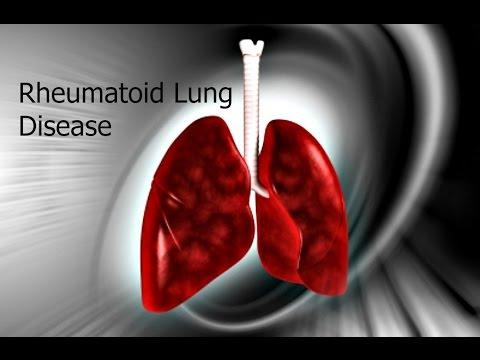 Rheumatoid Lung Disease