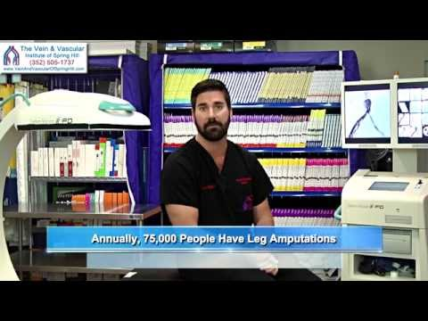 Vascular Surgery in Spring Hill FL to Improve Circulation In Legs Preventing Leg Amputation