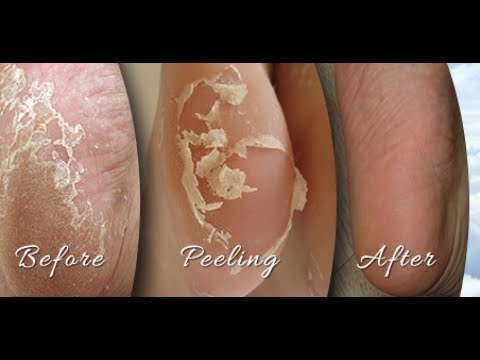 THIS ACID IS THE PERFECT FOOT PEEL REMEDY| 100% OVERNIGHT RESULTS